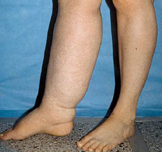 Musings from a lymphedema lady, a guest post by Jan Hasak