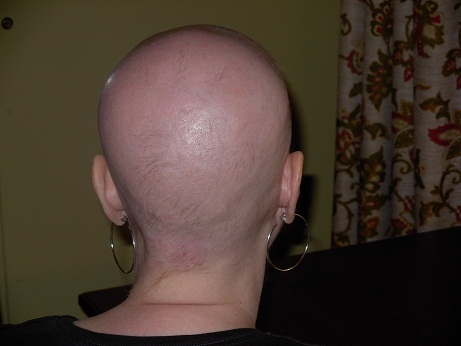 #Chemotherapy & #hairloss, it IS a big deal! #cancer #breastcancer #chemo