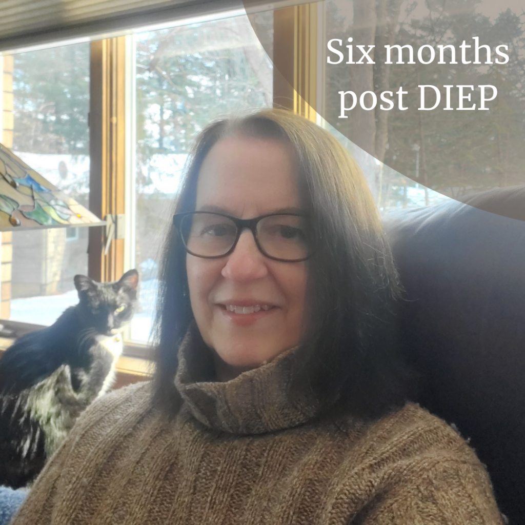 #6 Months Post #DIEPFlapSurgery - What's it like at? #breastcancer #breastreconstruction #womenshealth #surgery #mastectomy